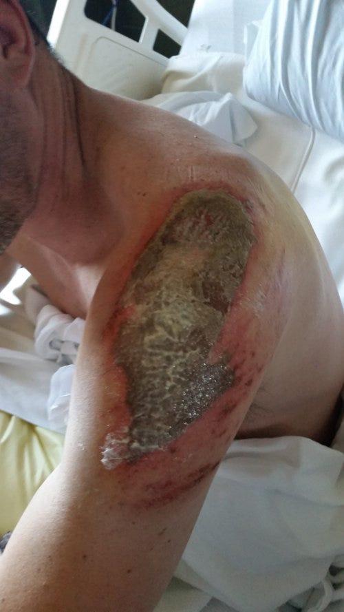 Road rash healing after his UTV crash